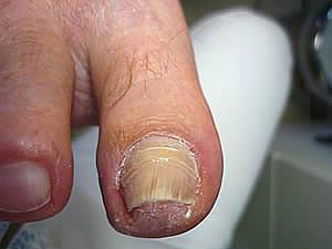 Gribki der Nägel die Symptome